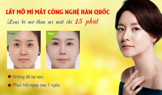 lay-mo-mi-mat-cong-nghe-han-quoc