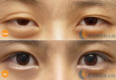 Lấy mỡ mí mắt tạo mắt đẹp hoàn hảo