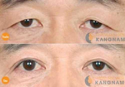mắt 1 bên 1 mí 1 bên 2 mí