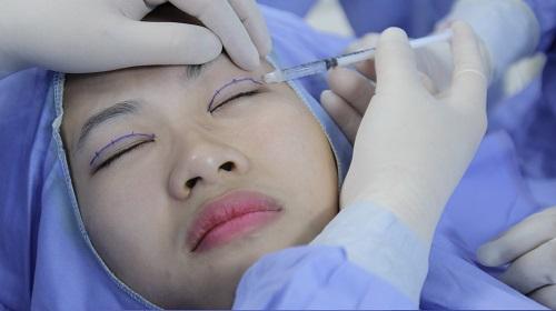 Cắt mí mắt khắc phục tình trạng sụp mí thứ cấp