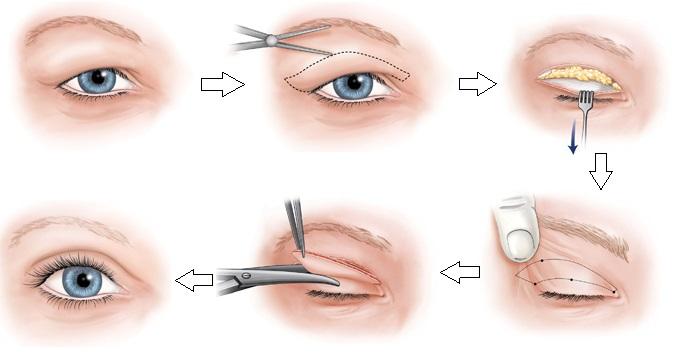 Chữa sụp mí mắt khắc phục sụp mí mắt hiệu quả