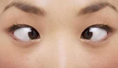 Mắt lé là gì