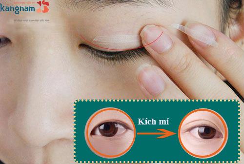 mắt mí lót 2