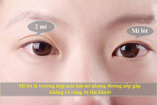 mắt mí lót 3
