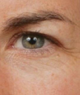 Mắt nhiều da chùng, bọng mỡ nên cắt mí hay bấm mí?