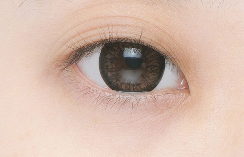 mắt nhiều mí