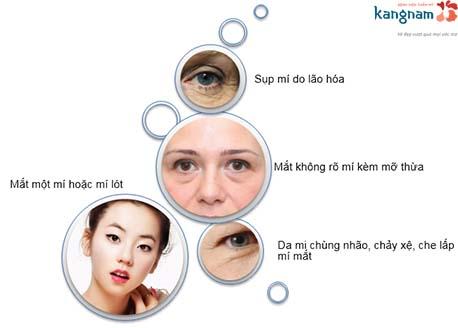 những lưu ý cắt mí mắt 4