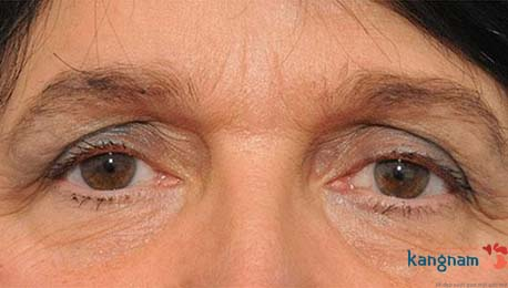 những lưu ý cắt mí mắt 1