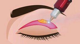 3 Công nghệ cắt mí mắt tại Kangnam được nhiều khách hàng sử dụng