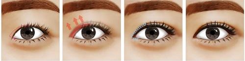 phẫu thuật mắt to 2