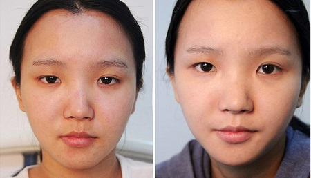 Phẫu thuật mắt to mắt nhỏ công nghệ Hàn Quốc đẹp toàn diện