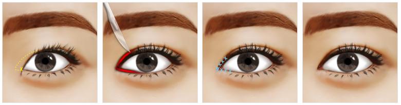 Phẫu thuật mắt to mắt nhỏ công nghệ Hàn Quốc