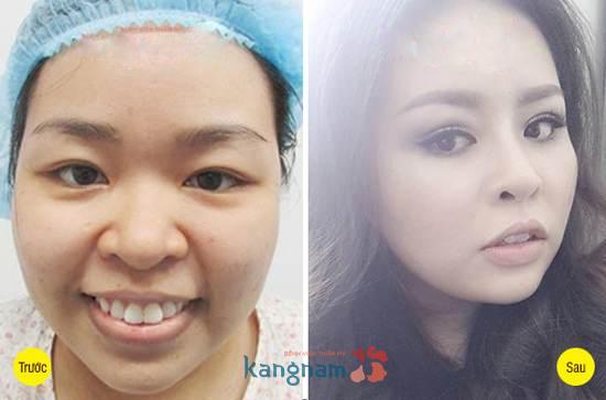 Kết quả cắt mí mắt của khách hàng tại Kangnam1