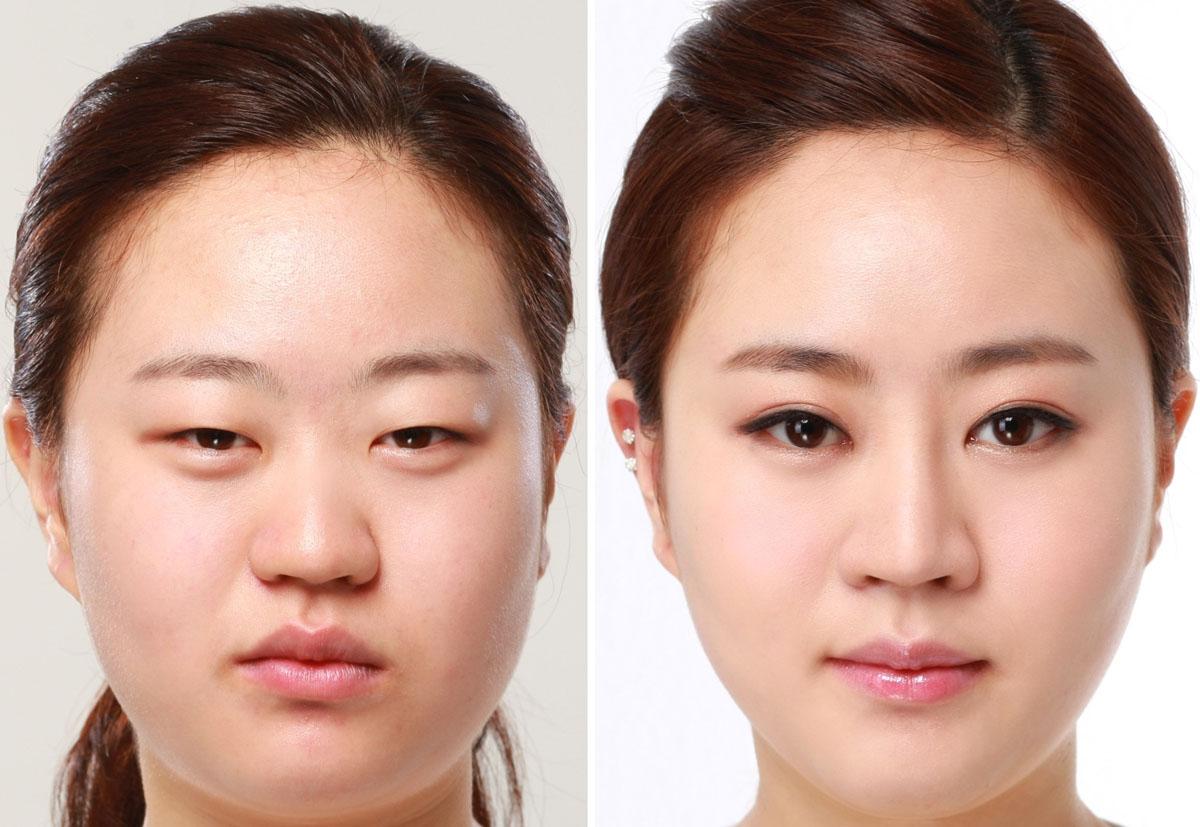 Mắt híp và cách biến mắt híp thành mắt hai mí to tròn? 6