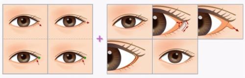 tạo khóe mắt