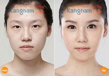 Tạo khóe mắt CN Hàn Quốc tại TMV Kangnam có gì khác biệt?
