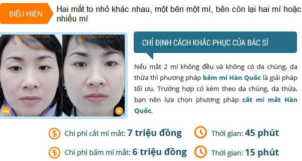 tham-gia-chuyen-de-tu-van-tham-mat-nhan-ngay-uu-dai-102