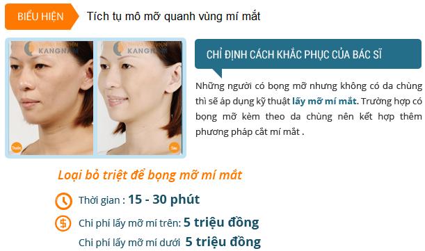 tham-gia-chuyen-de-tu-van-tham-mat-nhan-ngay-uu-dai-103