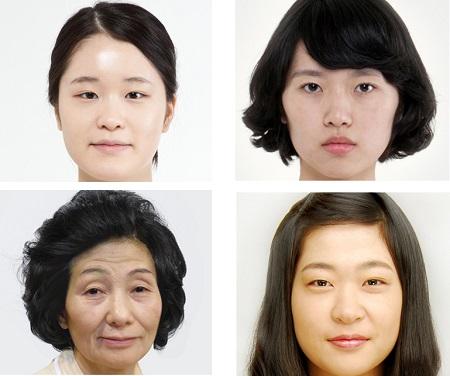 Thẩm mỹ cắt mí mắt Hàn Quốc dưới góc nhìn chuyên gia