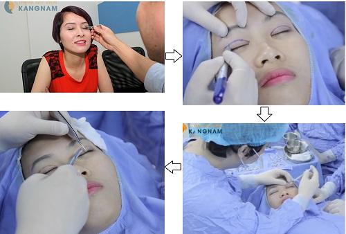 Thẩm mỹ cắt mí mắt Hàn Quốc