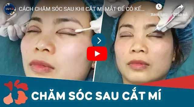 Video bác sĩ hướng dẫn cách chăm sóc mắt sau cắt mí mắt