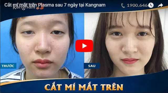 Video cách làm mắt to bằng cắt mí tại Kangnam