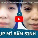 [Video] Cận cảnh quy trình + kết quả chữa sụp mí mắt bẩm sinh